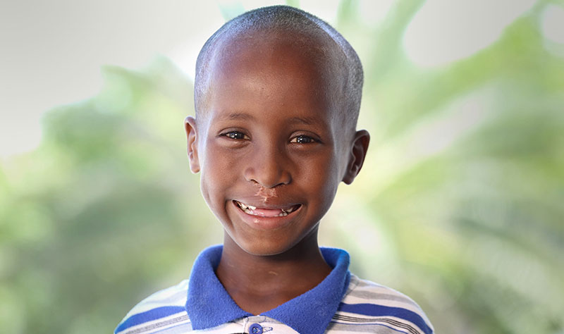 Smile Train Somalia